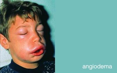 angiodema01